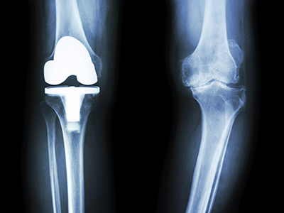 Knee Replacement Surgery Webster TX